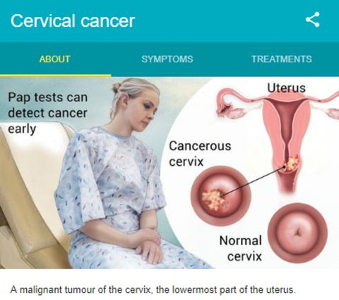 Gynecological Cancer - A silent killer for women